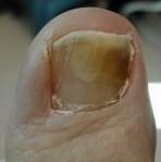 nail_fungus